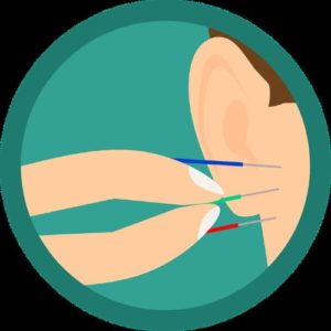 Qu'est- ce qu'on entend par auriculothérapie
